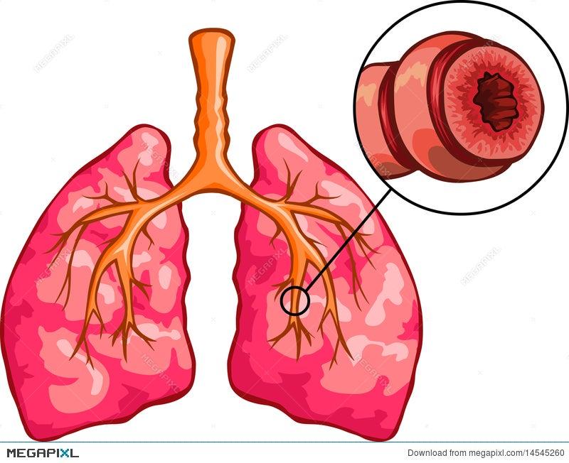 Asthma Illustration 14545260 - Megapixl