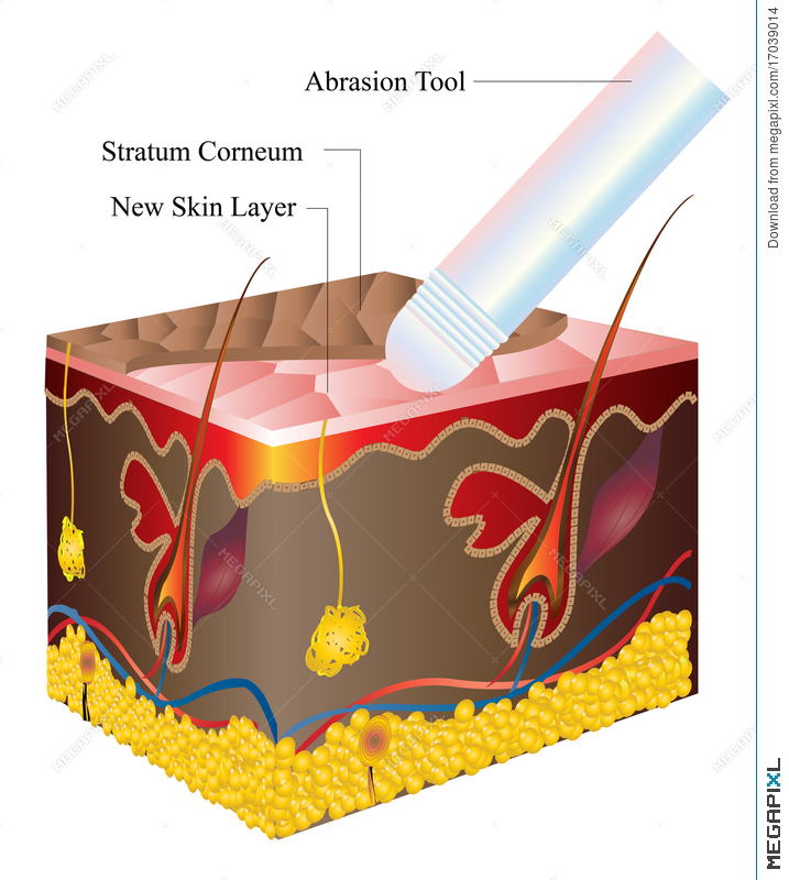 Skin Abrasion Illustration 17039014 - Megapixl