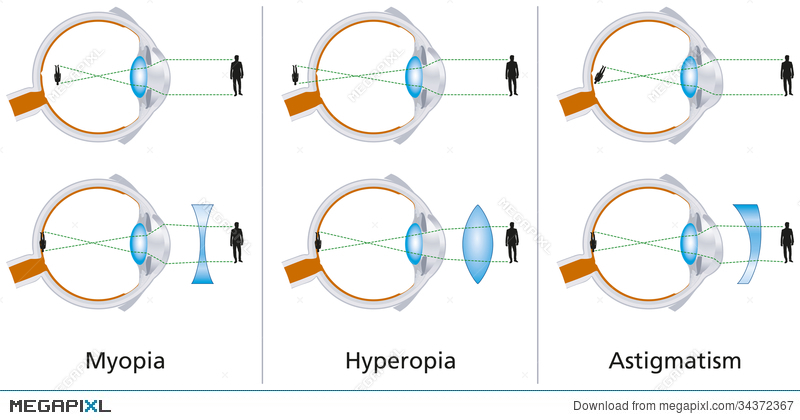 Myopia hyperopia and astigmatism explained