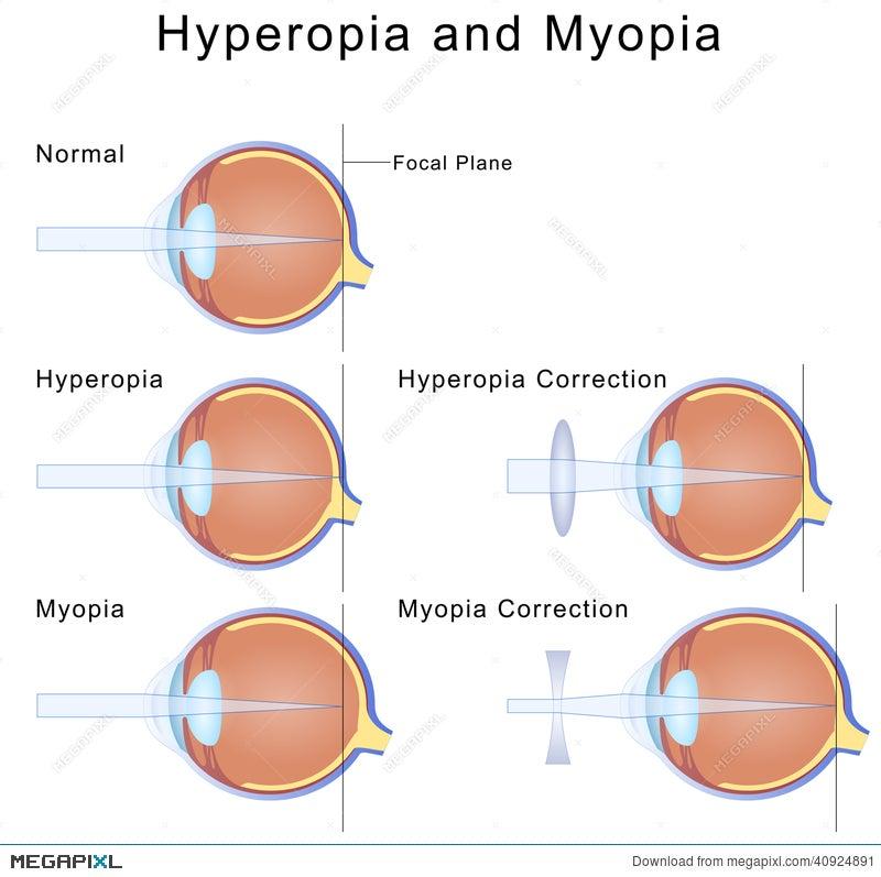myopia és hyperopia a különbségek a látást javító szem előkészítés