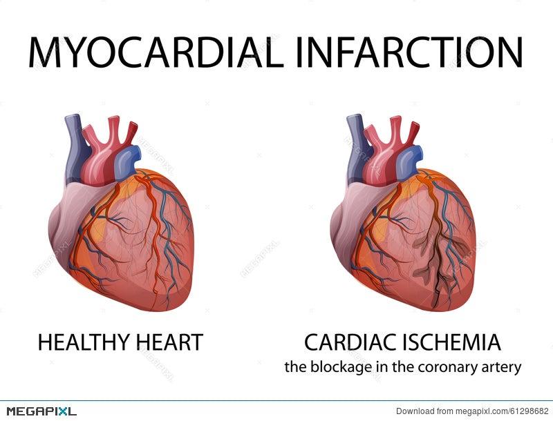 Heart. Myocardial Infarction. Illustration 61298682 - Megapixl