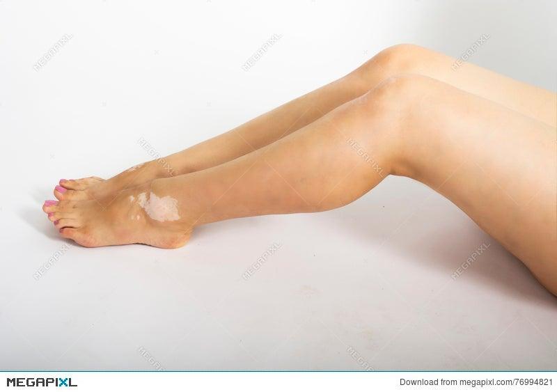 Female Legs With Vitiligo Disease Stock Photo 76994821 Megapixl